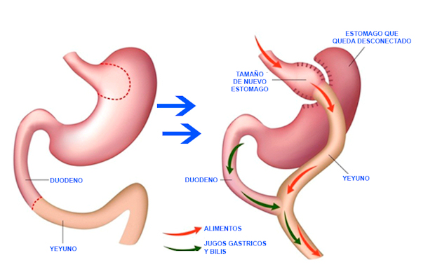bypass gastrico roma